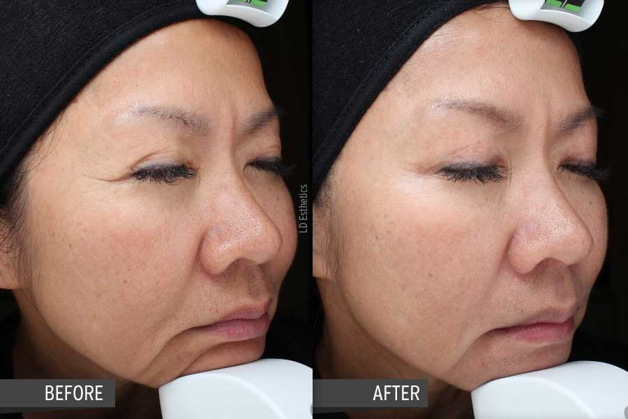 vipeel_before_after_02_liliane_daves_esthetics
